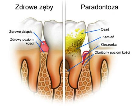 leczenie paradontozy stargard