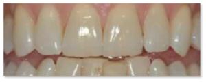 wybielanie zębów stargard