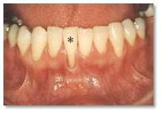 kwas hialuronowy Stargard, wybielanie zębów Stargard ortodonta Stargard.