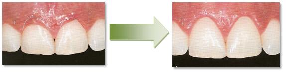 Wybielanie zębów Stargard dobry stomatolog dentysta ortodonta chirurg Stargard