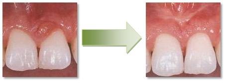 Dobry stomatolog Stargard dobry dentysta Stargard wybielanie zębów Stargard