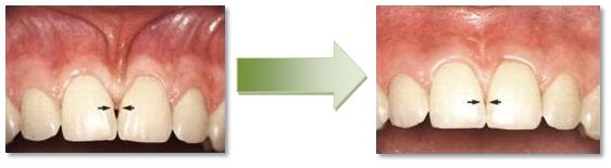 Wybielanie zębów Stargard, dobry stomatolog Stargard, dentysta Stargard