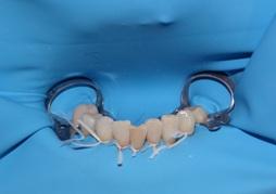 endodoncja stargard
