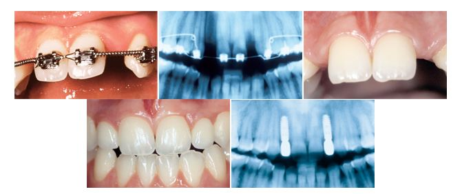 niewykształcone zęby