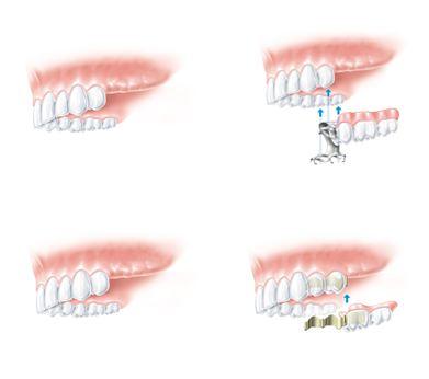 brak zębów z boku