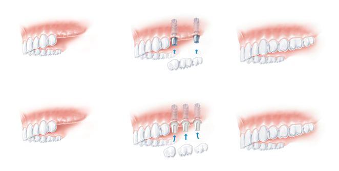 braki zębowe z boku
